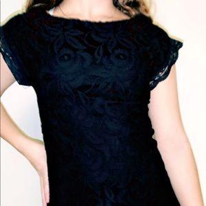 casual cotton lace dress ✰